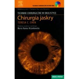 Chirurgia jaskry. Seria Techniki chirurgiczne (z DVD) - NISKA CENA